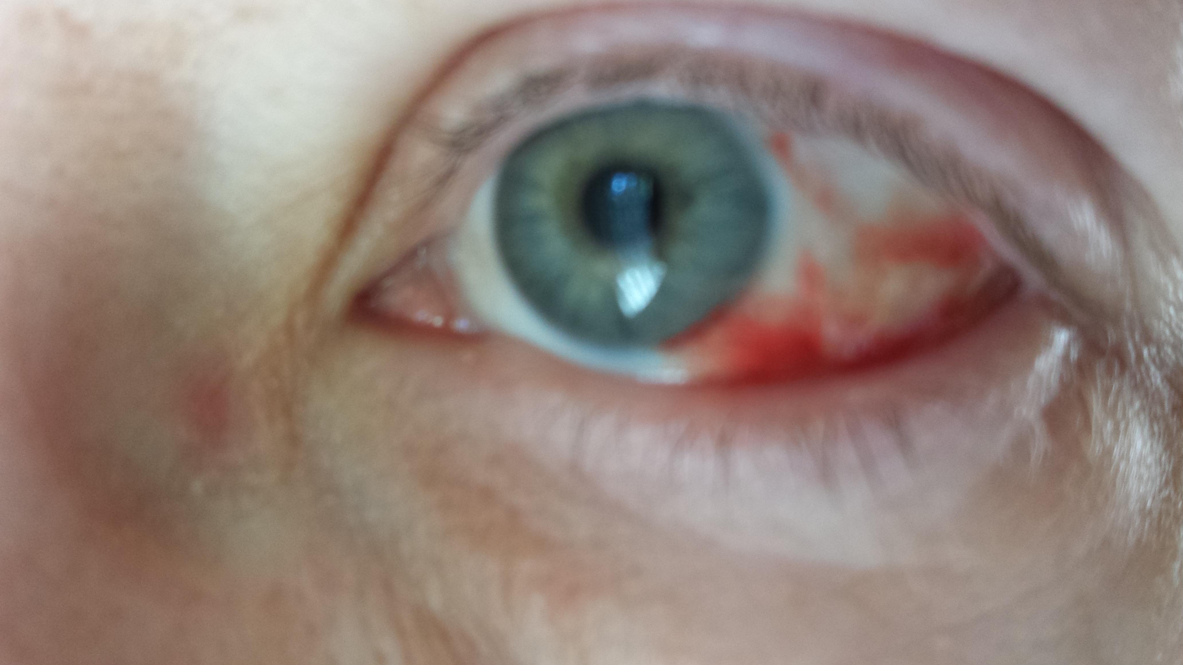 röda blodkärl i ögonen